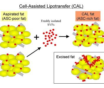 顔の脂肪萎縮症の治療のための脂肪移植