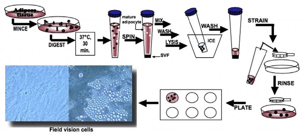 脂肪由来幹細胞:単離、拡大およ...