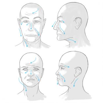 顔の浮腫が老眼を作る。