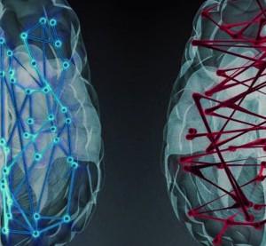 남녀의 뇌 차이에 대한 연구