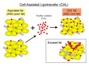 Cell-Assisted Lipotransfer for Facial Lipoatrophy: Efficacy of Clinical Use of ADSC