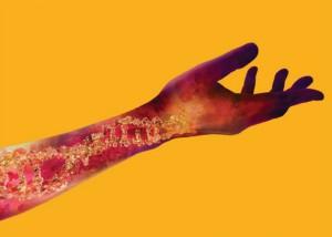 Circulating tumour DNA